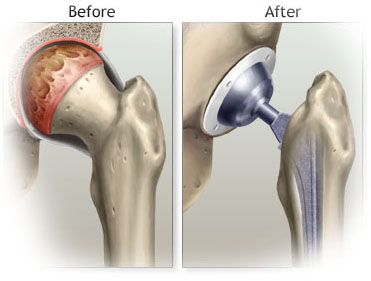 Joint-Replacement-Devices