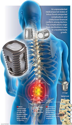 Medtronic Infuse Lawsuit Alleges Off-Label Use Cause Painful Complications