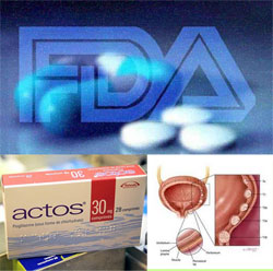 National Law Firms Calls for More FDA Action on Actos Bladder Cancer Threat