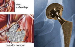 New Study Links Metal-on-Metal Hip Replacement Corrosion with Adverse Local Tissue Reactions
