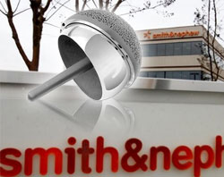 Smith & Nephew Says Metal-on-Metal Hip Replacement Controversy Slowing Sales of Birmingham Hip Resurfacing System