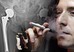 Smokers More Vulnerable to Joint Replacement Failures
