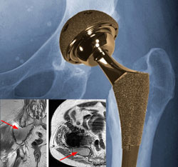 Majority of Metal-on-Metal Hip Implant Failures Occur within Two Years, Study Finds