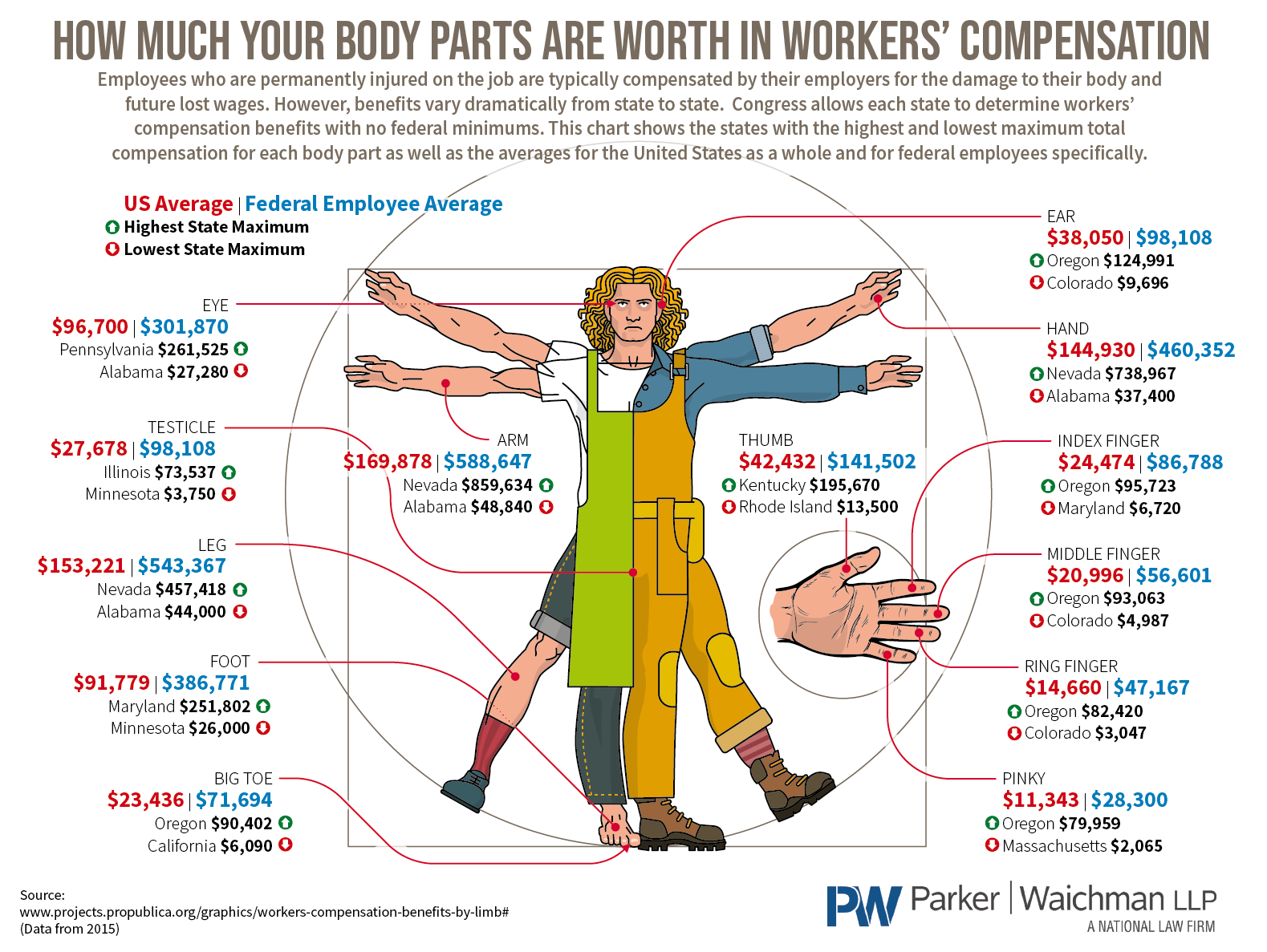 How much body parts worth workers compensation 4