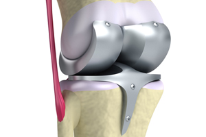 Zimmer Persona Knee Implant Recall, Injury Lawsuits