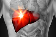 Antibiotic Zithromax Linked to Potential Liver Problems