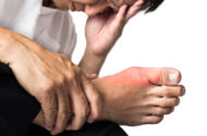 Gout Medication Zyloprim Linked to Serious Skin Reaction