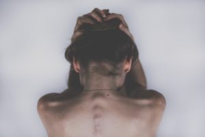 A woman holding her head due to Essure symptom pains