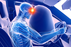 Brain injuries common among automobile accident victims