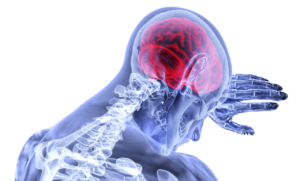 An illustration shows the brain and spinal column, which can be injured in an accident