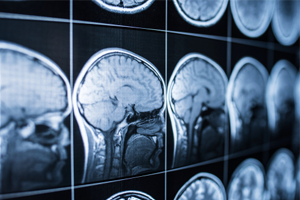 The three types of motor vehicle accident-related brain injuries
