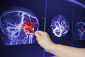 Car accidents brain bruising and contusion lawsuit lawyers in new york