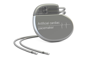 Abbott's assurity and endurity implantable pacemaker recall