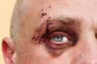 Facial Scarring Lawsuits