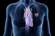 Boston Scientific Cardiac Resynchronization Therapy Pacemaker Lawsuits