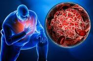 Janus kinase inhibitor warning