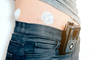 Medtronic insulin pump lawsuits